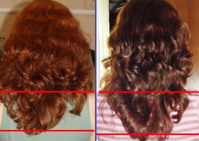 никотиновая кислота для роста волос применение видео
