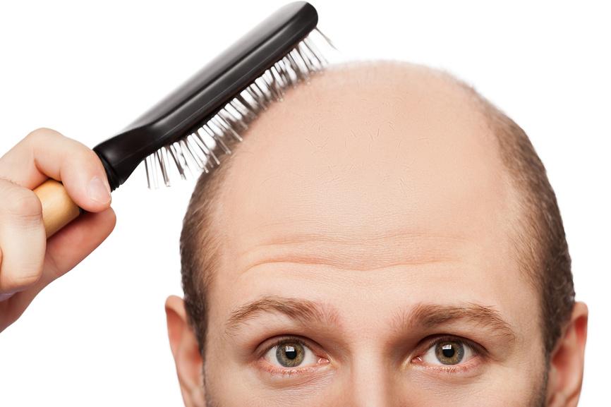 Алерана рост волос витамины отзывы