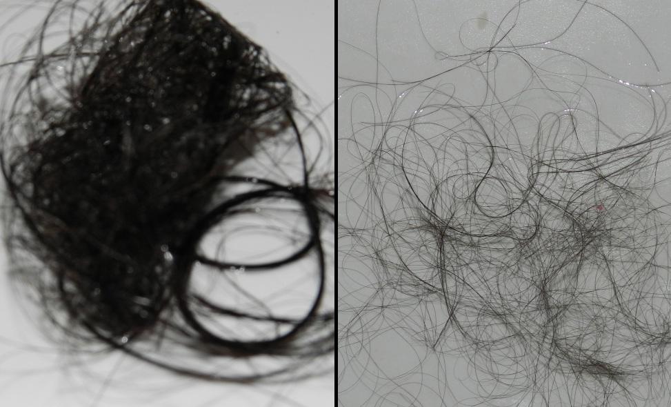 эсвицин отзывы фото до и после