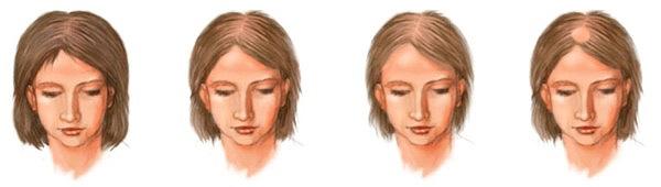 Стадии развития андрогенной алопеции у женщин