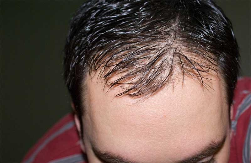 Причины андрогенного облысения у мужчин: заболевания