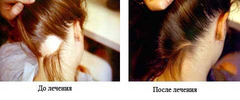 Андрогенное облысение: до и после лечения