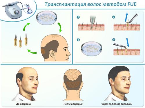 Трансплантация волос методом FUE