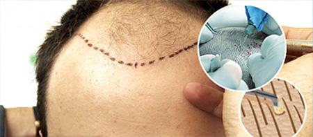 Бесшовная пересадка волос методами HFE и FUE