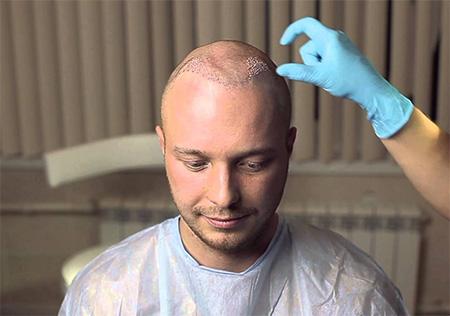 Бесшовная Пересадка волос HFE и FUE