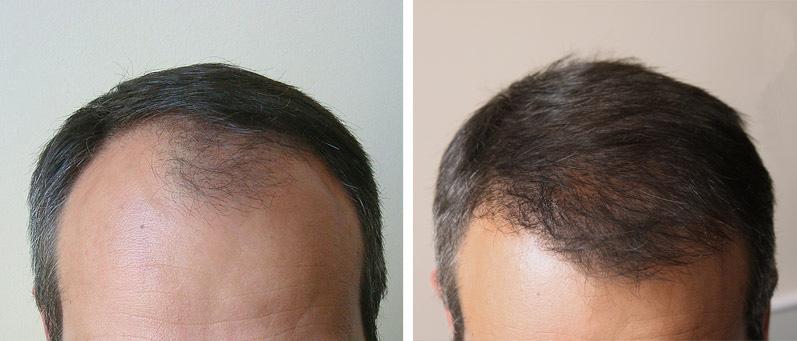 До после пересадки волос фото до и после