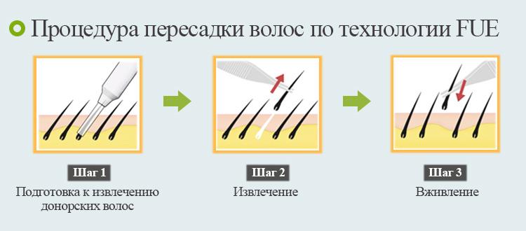 besshovnaya-peresadka-volos-metodami-hfe-i-fue-8