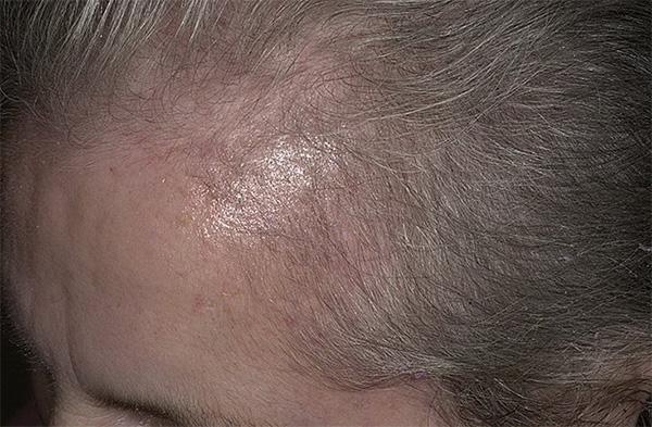 Диффузное телогеновое выпадение волос