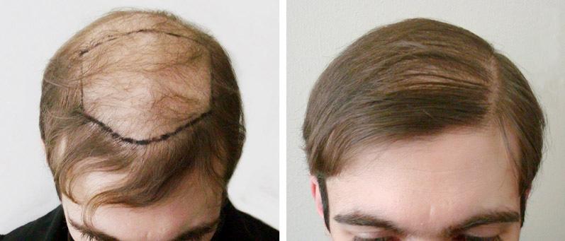 Пересадка волос — самый радикальный способ избавиться от лысины