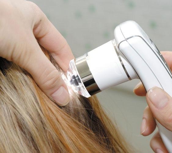 Аппаратное лечение выпадения волос