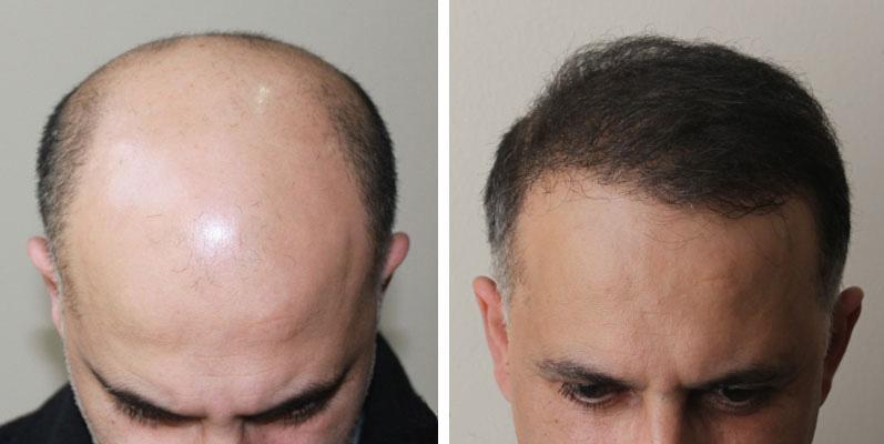 Фото: ДО и ПОСЛЕ трансплантации волос