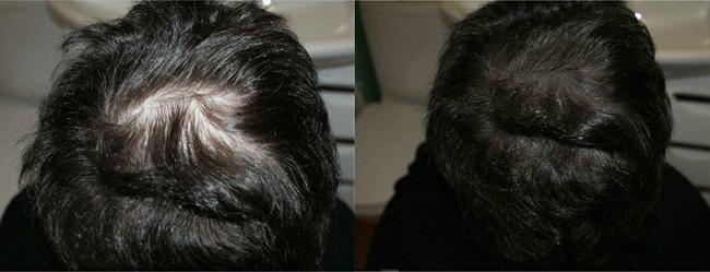 Камуфляж держится на волосах до первого мытья головы