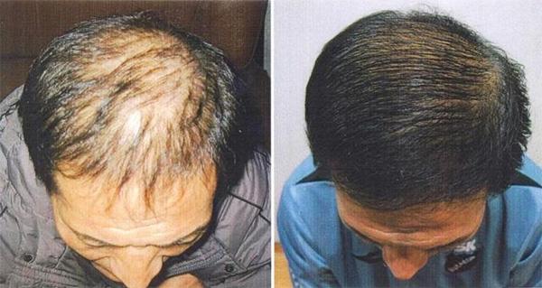 Результаты мезотерапии кожи головы