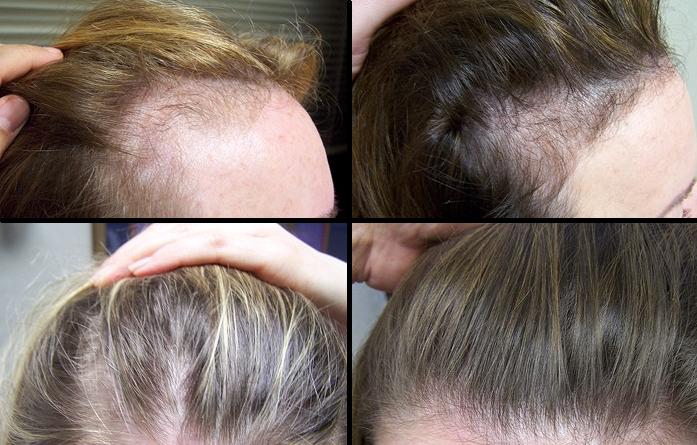 Миноксидил для волос цена