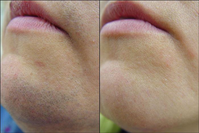 Результат удаление волос муравьиным маслом на лице у женщины