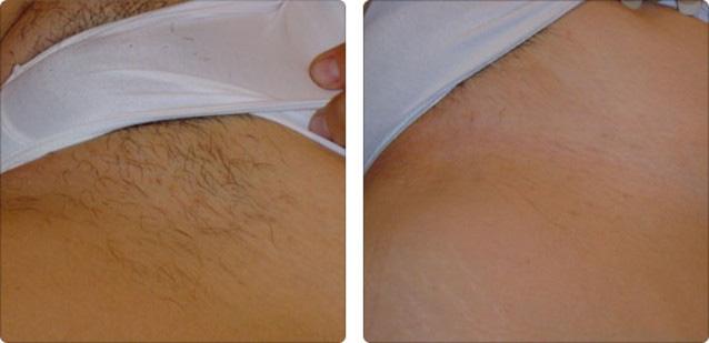 Результат удаление волос муравьиным маслом на мягких тканях