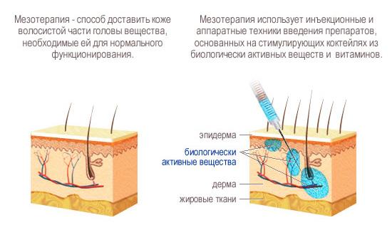 Что такое мезотерпия? Принцип мезотерапии.