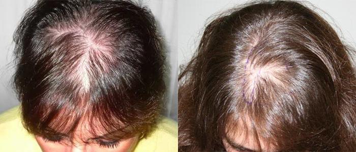 Зуд головы выпадение волос и перхоть что это