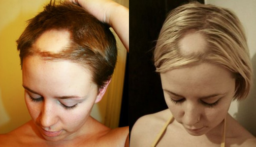 Почему выпадают волосы причины у женщин
