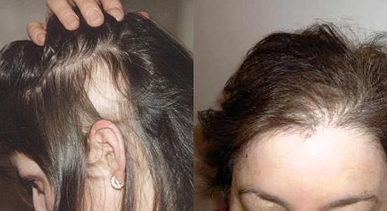 Сильно выпадают волосы от воды