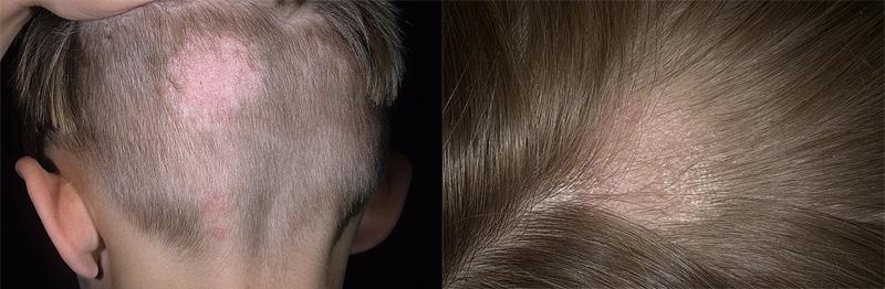 Волосы с головы выпадают волосы