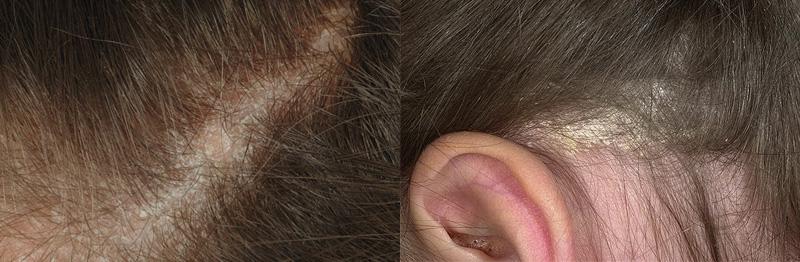 экранирование волос на темные волосы