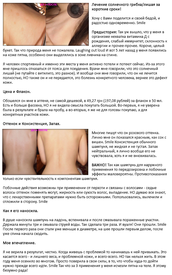 Шампунь дермазол ОТЗЫВ - лечение солнечного грибка и лишая за короткие сроки