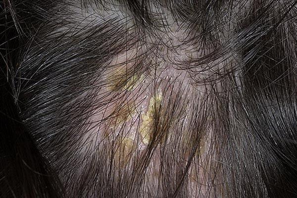 Жирная себорея волос отзывы