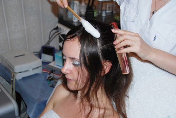 Криотерапия кожи головы