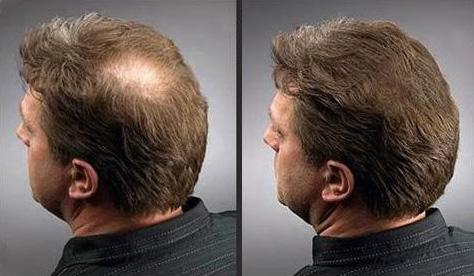 simptomy-prichiny-i-lechenie-alopecii-u-muzhchin-i-zhenshhin-10