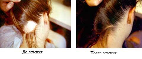 simptomy-prichiny-i-lechenie-alopecii-u-muzhchin-i-zhenshhin-11