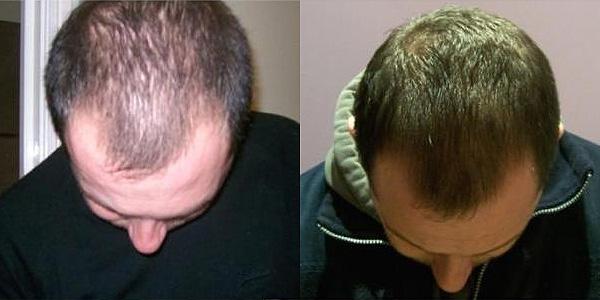simptomy-prichiny-i-lechenie-alopecii-u-muzhchin-i-zhenshhin-12