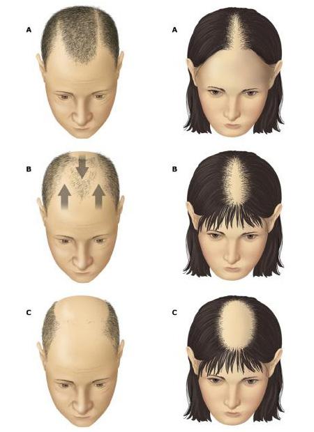 simptomy-prichiny-i-lechenie-alopecii-u-muzhchin-i-zhenshhin-5