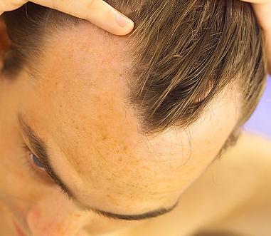Описание причин выпадения волос у мужчин