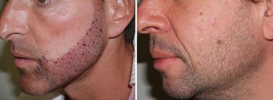 Пересадка волос на бороду осуществляется методом FUE  – это самая прогрессивная и распространенная техника трансплантации волос во всем мире