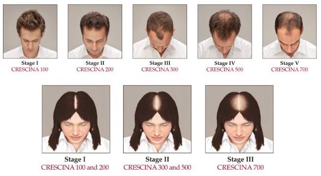 Соотношение стадий облысения и средств Crescina