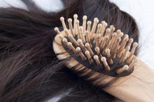 Выпадения волос при гипотиреозе