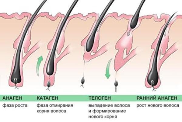 Как понять что выпадают волосы