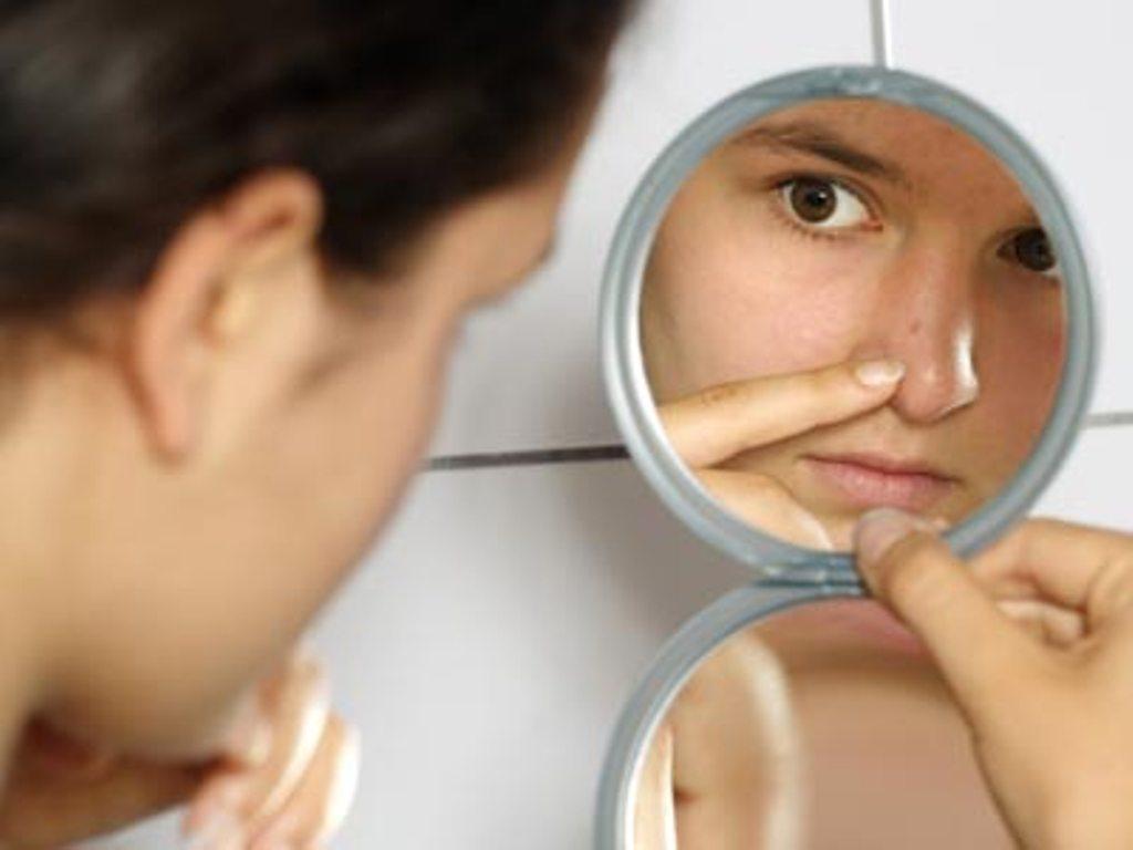 Одна из причин выпадения волос у подростков - гормональные изменения