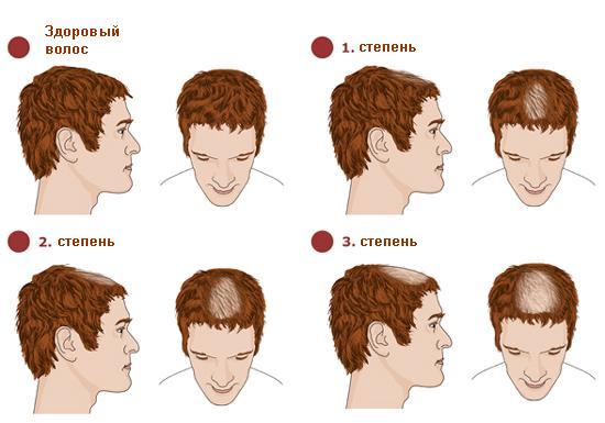 Выпадают волосы и болит голова причины и